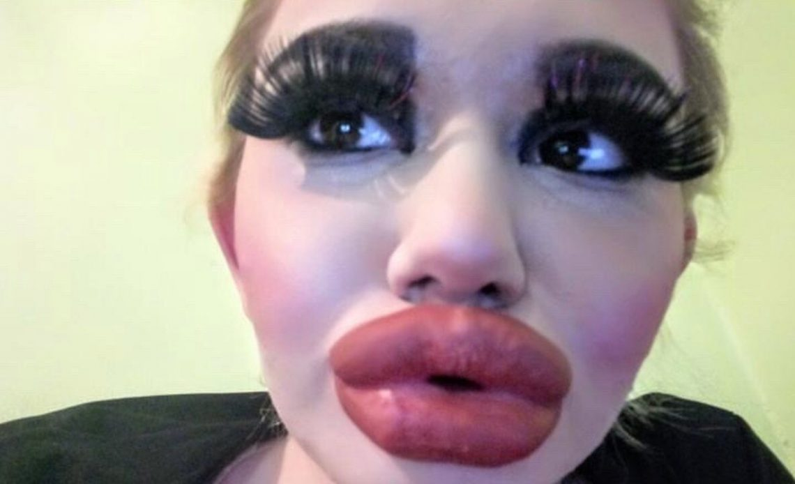 large lips, lip fillers
